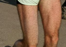 Leg_Muscle_weakness_Lead_Toxicity